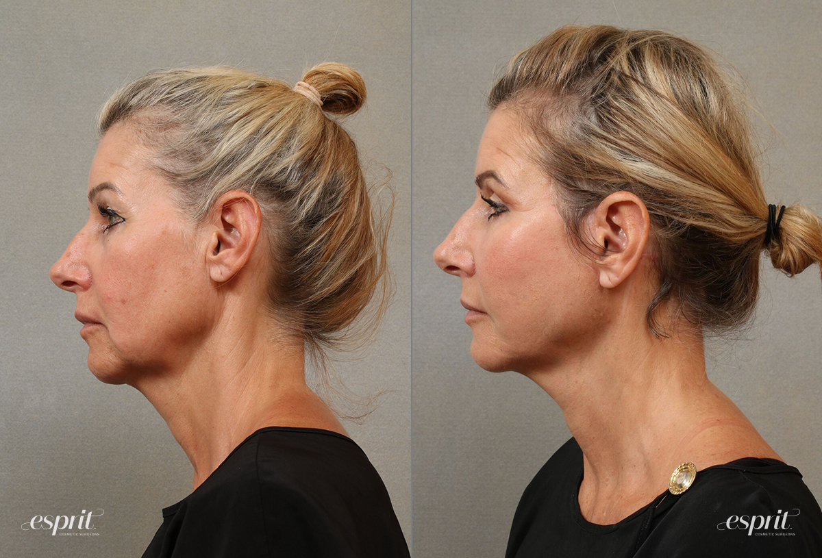Case 3107 Neck Lift Left Side recropped