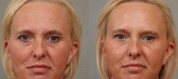 Esprit_Tualatin_Botox_Case_Front_1
