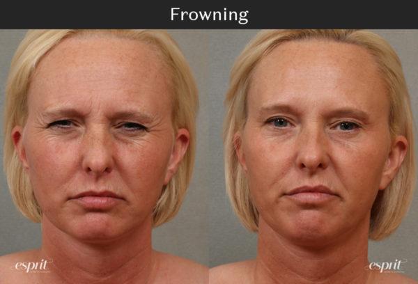 Esprit_Tualatin_Botox_Case_Front_2