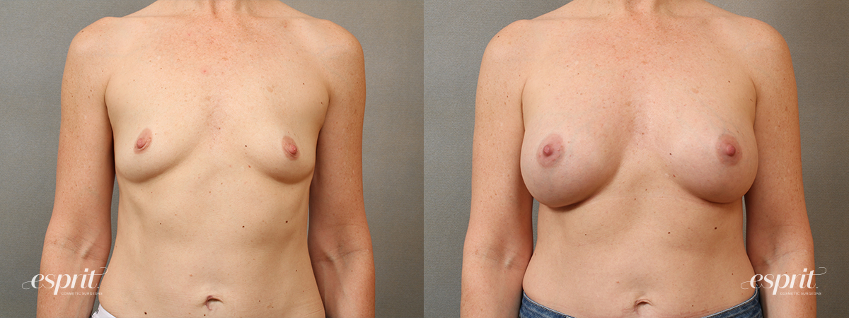 Esprit_Tualatin_Breast_Augmentation_Case4114_Front