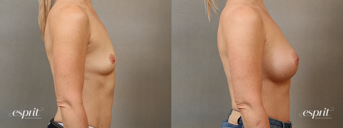 Esprit_Tualatin_Breast_Augmentation_Case4114_Side