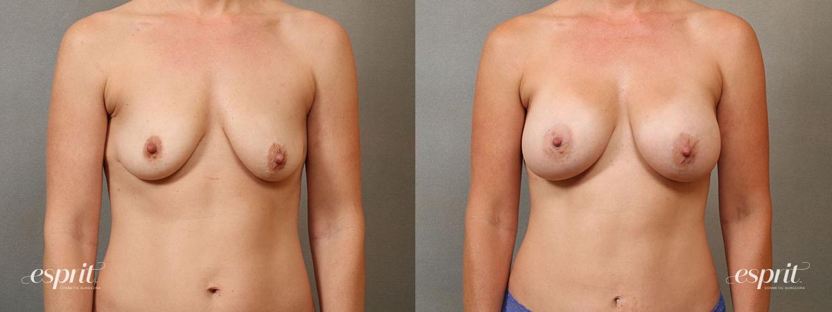 Esprit_Tualatin_Breast_Augmentation_Case4115_Front