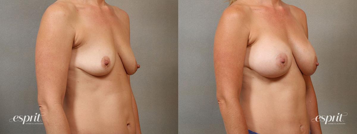 Esprit_Tualatin_Breast_Augmentation_Case4115_Oblique