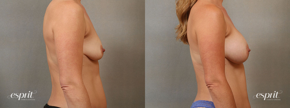 Esprit_Tualatin_Breast_Augmentation_Case4115_Side