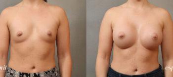 Esprit_Tualatin_Breast_Augmentation_Case4116_Front