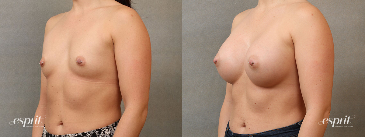 Esprit_Tualatin_Breast_Augmentation_Case4116_Oblique