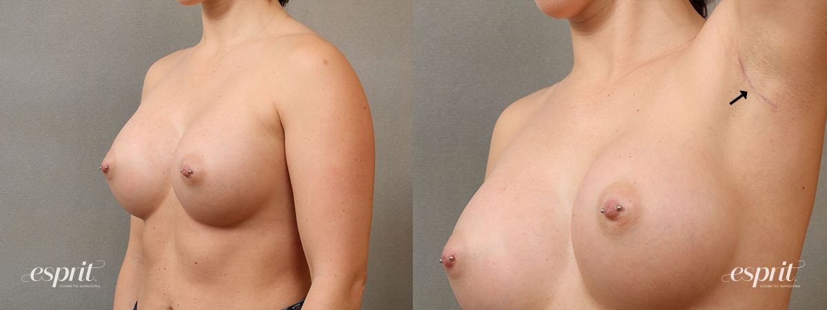 Esprit_Tualatin_Breast_Augmentation_Case4116_Scar