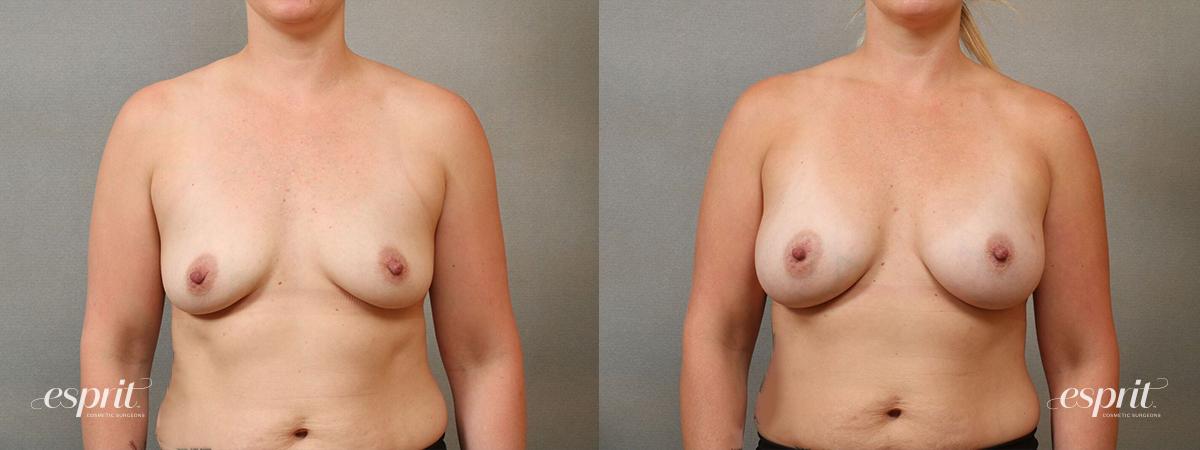 Esprit_Tualatin_Breast_Augmentation_Case4117_Front