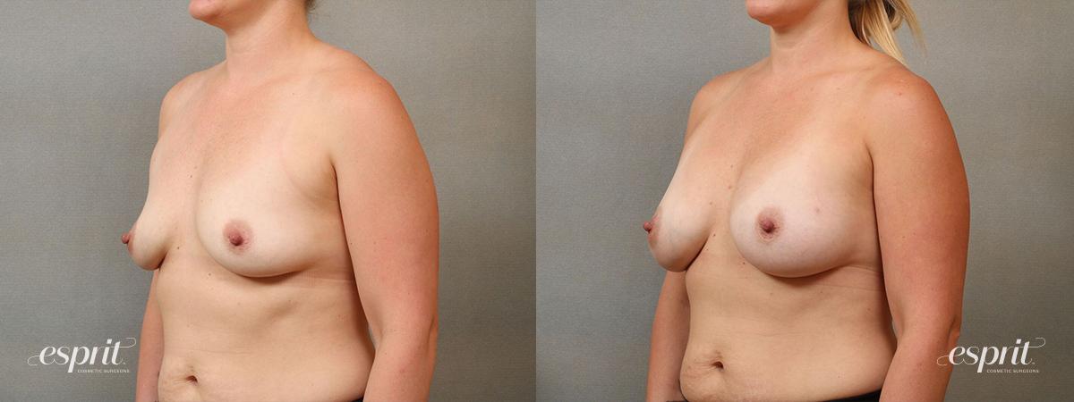 Esprit_Tualatin_Breast_Augmentation_Case4117_Oblique