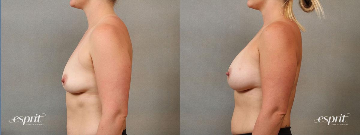 Esprit_Tualatin_Breast_Augmentation_Case4117_Side
