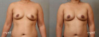 Esprit_Tualatin_Breast_Fat_Grafting_Case2204_Front