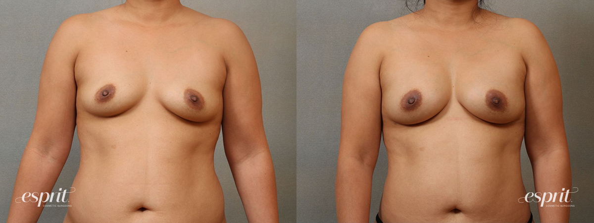Esprit_Tualatin_Breast_Fat_Grafting_Case2204_Front