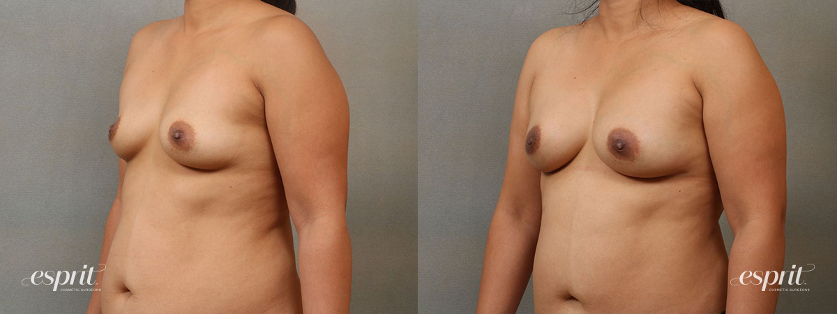 Esprit_Tualatin_Breast_Fat_Grafting_Case2204_Oblique
