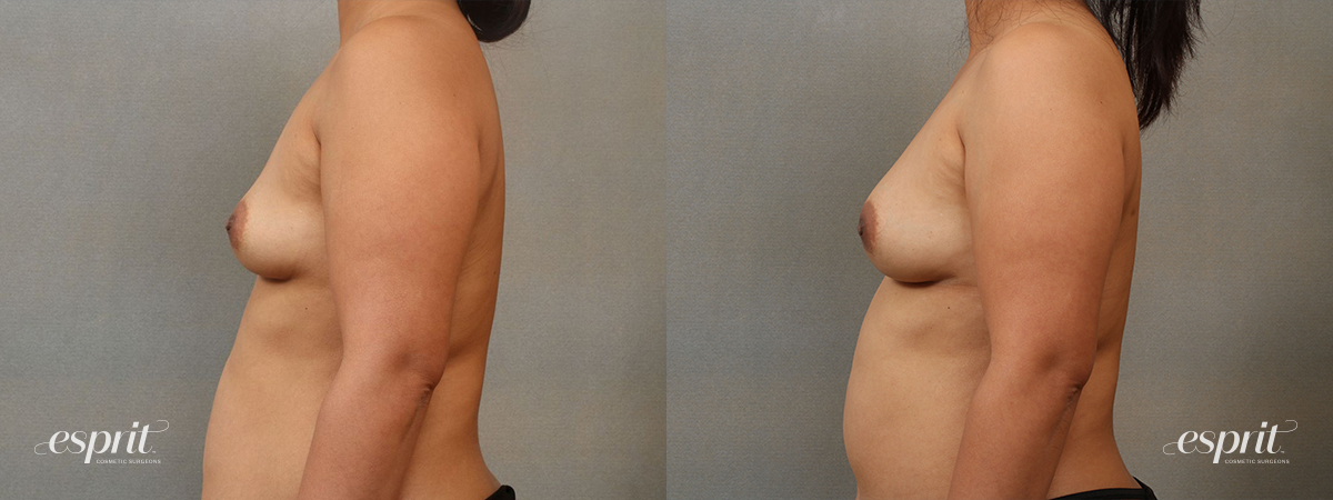Esprit_Tualatin_Breast_Fat_Grafting_Case2204_Side