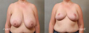 Esprit_Tualatin_Breast_Reduction_Case5102_Front