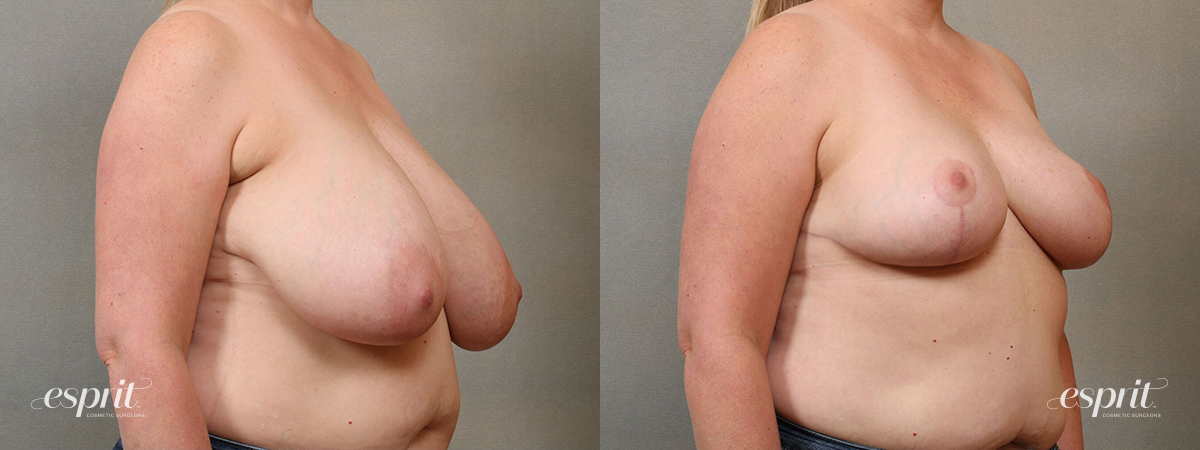 Esprit_Tualatin_Breast_Reduction_Case5102_Oblique