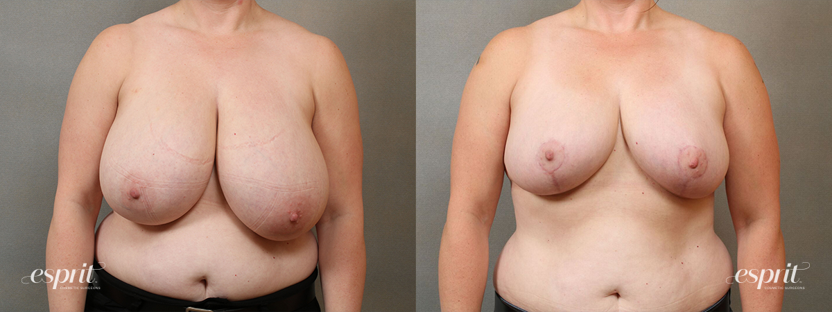 Esprit_Tualatin_Breast_Reduction_Case5104_Front
