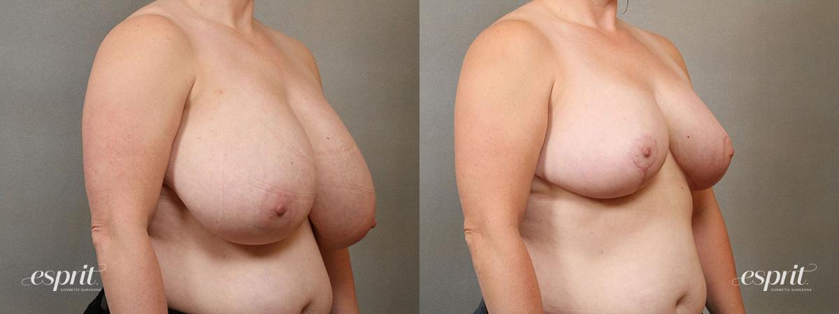 Esprit_Tualatin_Breast_Reduction_Case5104_Oblique