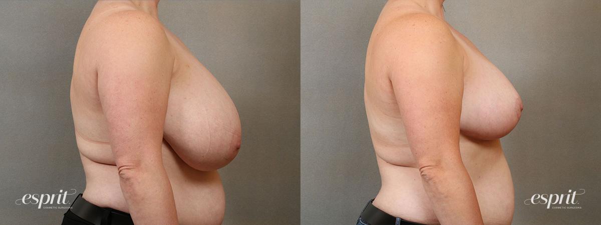 Esprit_Tualatin_Breast_Reduction_Case5104_Side